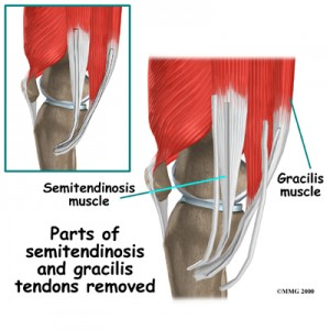 Hamstring Tendons Used in ACL Reconstruction